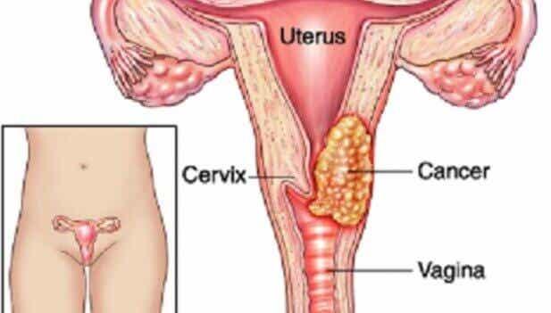자궁 경부암 발병의 7가지 요소