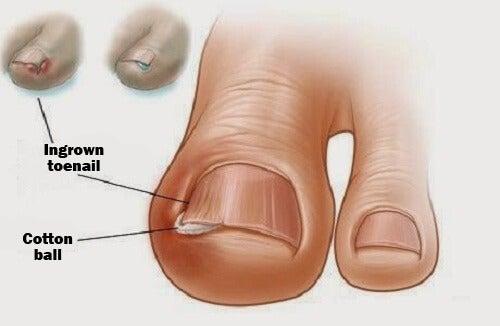 발가락 내성 발톱