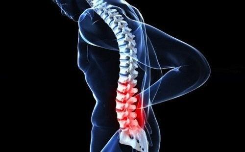 3-spinal-cancer