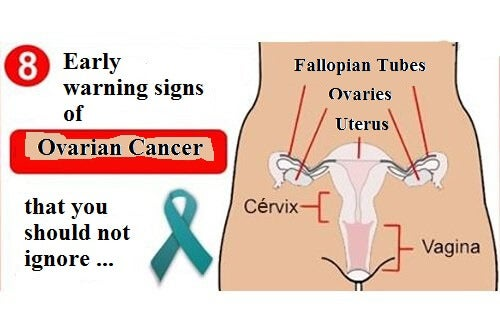 ovarian-cancer-warning-signs-500x323
