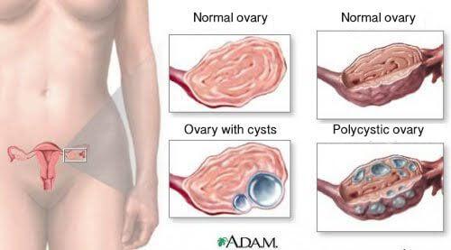 여성이 알아야 할 난소낭종에 대한 9가지 사실