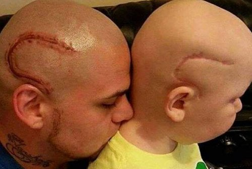 1-father-and-son-with-cancer