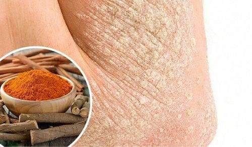 건선 피부염을 천연 성분으로 치료하는 7가지 방법