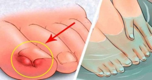 6-home-remedies-for-alleviating-ingrown-toenails