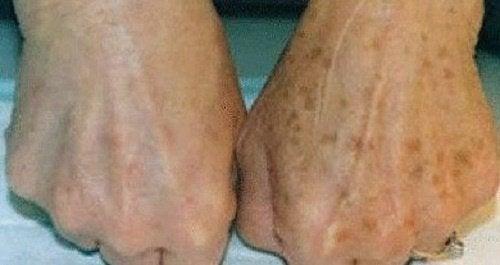 세월의 흔적: 손에 생긴 검버섯을 없애는 법