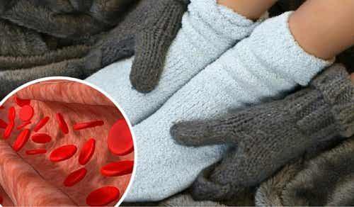 혈액순환 및 염증 치료 요법