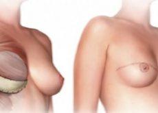 1-masectomy