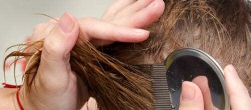 머릿니를 없애는 7가지 자연 요법