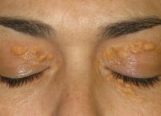 1-bumps-above-eyelid