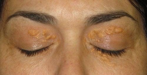 1-bumps-above-eyelid