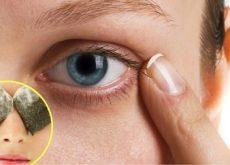 1-eye-treatments