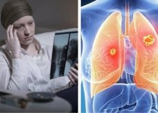 1-lung-cancer-women