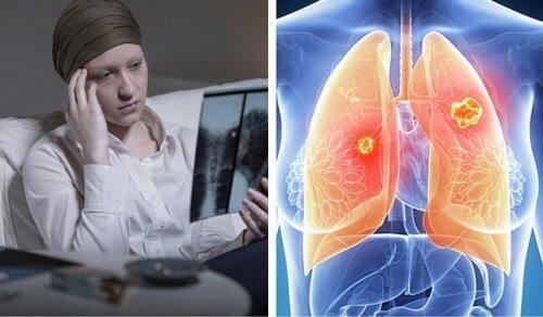 여성에게 더 치명적인 폐암