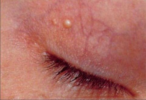 눈 주위에 생기는 노란 반점, 황색판종