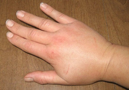 4-swollen-hand
