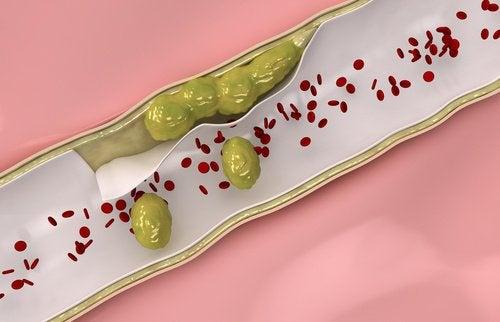동맥을 깨끗하게 하는 데 도움이 되는 식품 9가지