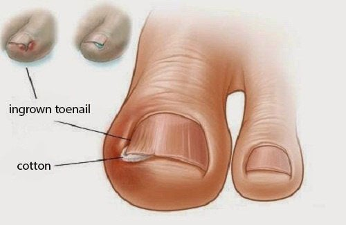 전통적인 내성발톱 치료제 6가지