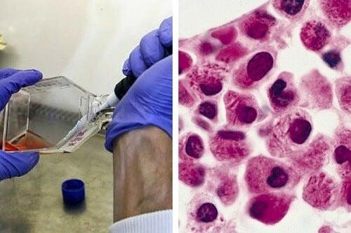 백혈병 암세포를 자멸하게 하는 법 발견