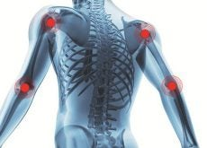 arthritis-and-joint-pain-500x330