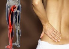 dolor-de-ciatica-500x339-500x339