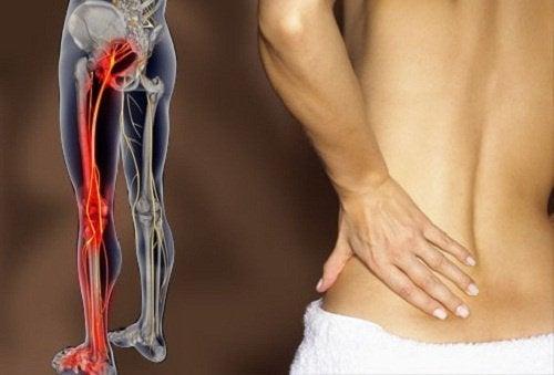 운동으로 좌골신경통을 경감시키는 방법