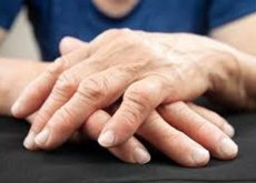 new-method-of-treating-arthritis-500x333