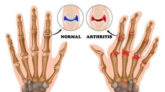 things-you-did-not-know-about-arthritis-1