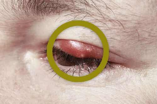 집에서 눈 다래끼 치료하는 방법