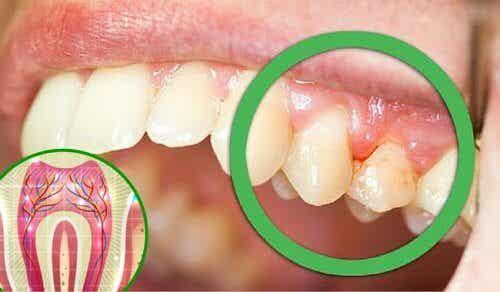 치통이 생길 수 있는 6가지 원인