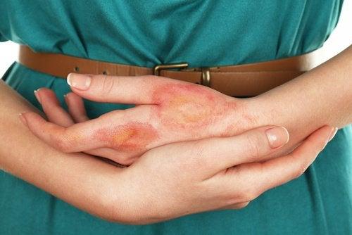 피부암에 대해 몰랐던 사실 7가지