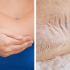 dry-elbows-knees