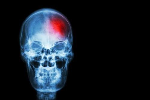 꼭 알아두어야 할 뇌졸중 증상
