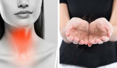갑상샘 문제로 인한 탈모 증상에 도움 되는 8가지