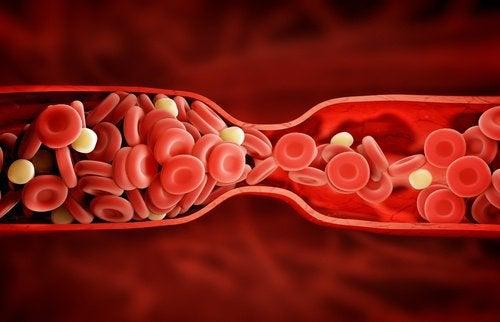 나쁜 콜레스테롤을 치료하는 새로운 치료법
