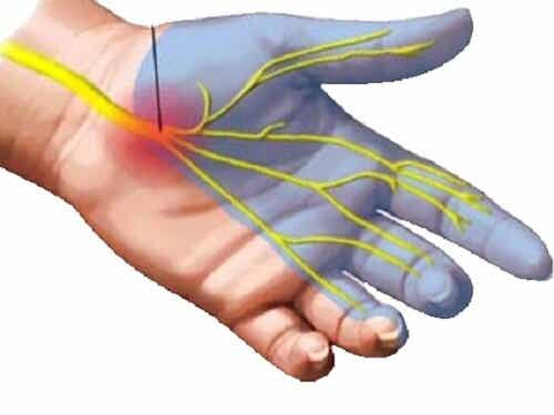 손목 터널 증후군을 완화하기 위한 7가지 방법