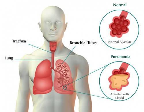 폐렴에 걸렸을 때 나타나는 증상과 치료법