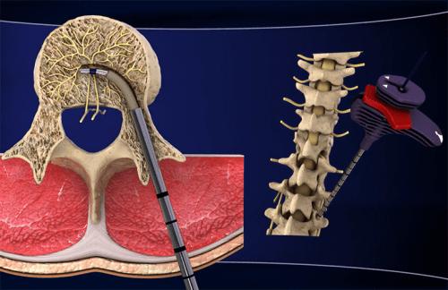 만성 하부 요통을 위한 새로운 치료법 발견