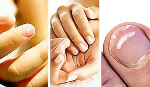 건강 문제를 알려주는 손톱의 신호 5가지