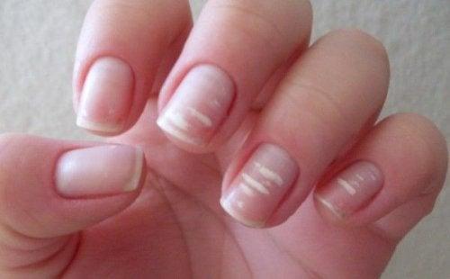 손톱에 하얀 반점이 칼슘