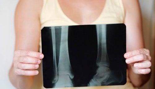 여성의 골다공증: 예방과 치료