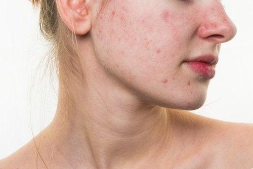 얼굴 피부를 망치는 식습관 5가지