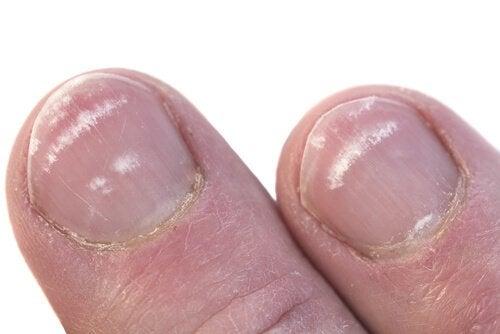 부러진 손톱