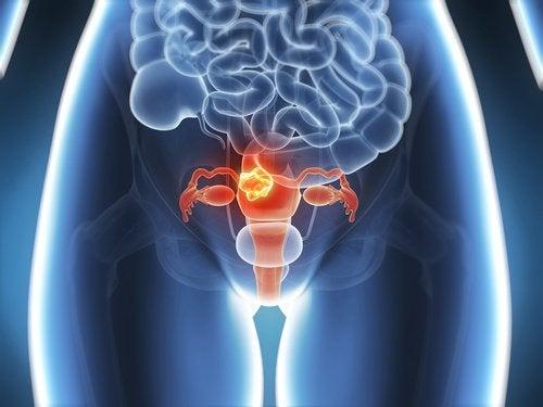 자궁근종 형태, 원인, 위험 및 증상