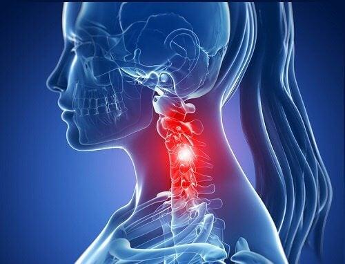경부 경추증의 증상과 자연 치료법