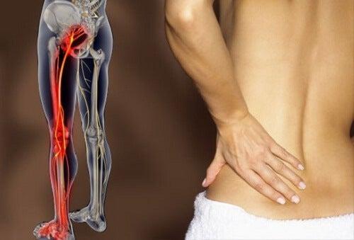 좌골 신경통 및 하부 요통 치료법