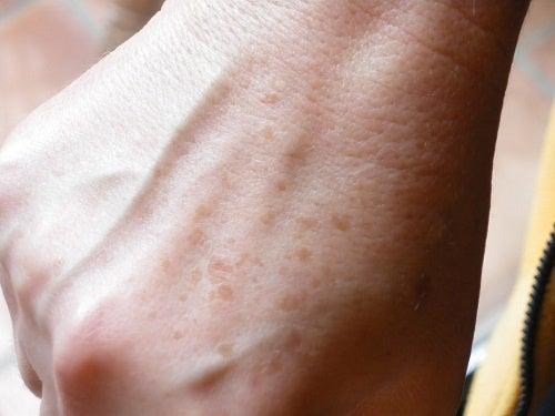 손에 생긴 검버섯과 주근깨를 없애는 홈치료제