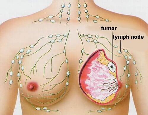 여성들에게 가장 흔한 5가지 암
