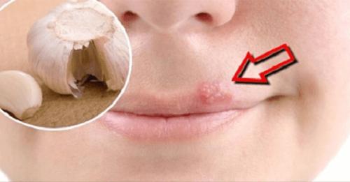입술 물집을 빨리 치유하는 홈치료제