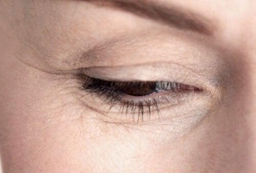 눈 밑 주름 없애는 방법