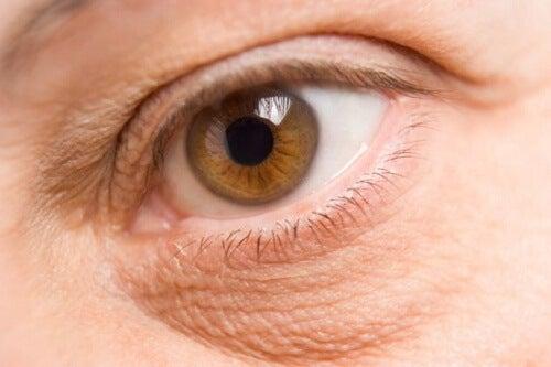 눈밑 지방을 제거 및 완화하는 방법